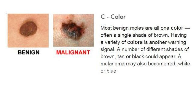 Spotting skin cancer can be as easy as ABC