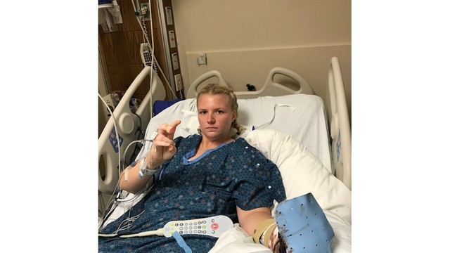 Tampa Bay woman's fingers reattached for wedding day after wood-chipper accident (14)_1552063231859.jpg.jpg