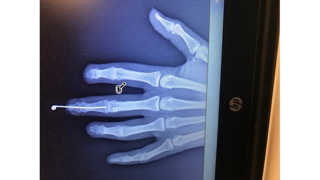 Tampa Bay woman's fingers reattached for wedding day after wood-chipper accident (34)_1552063239010.jpg.jpg